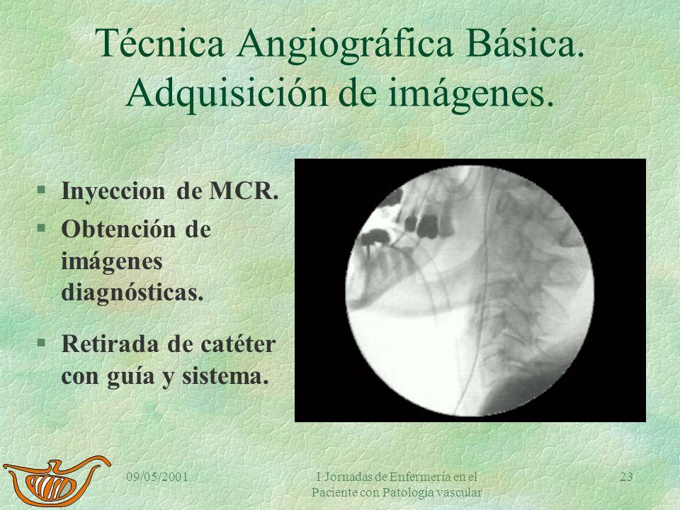 09/05/2001I Jornadas de Enfermería en el Paciente con Patología vascular 22 Seldinger VI §Avance del catéter siguiendo la guía