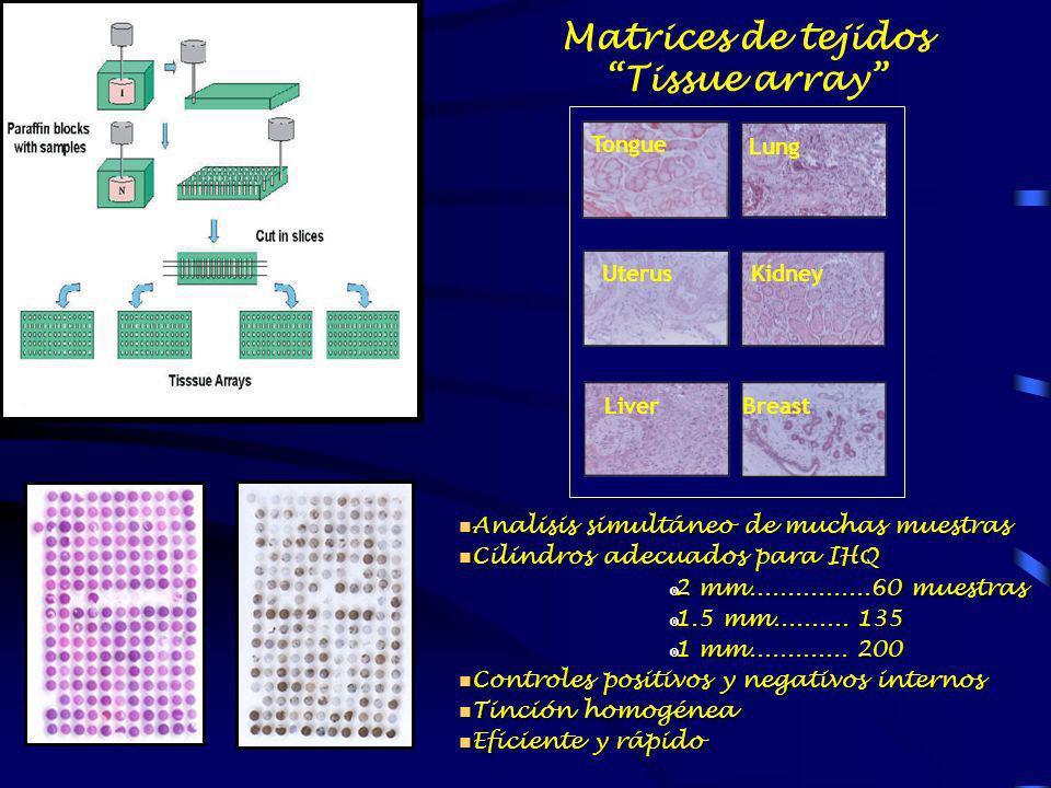 Matrices de tejidos Tissue array n Analisis simultáneo de muchas muestras n Cilindros adecuados para IHQ 2 mm................60 muestras 2 mm.........