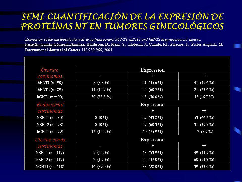 Ovarian carcinomas Expression -+++ hENT1 (n =90)8 (8.8 %)41 (45.6 %) hENT2 (n= 89)14 (15.7 %)54 (60.7 %)21 (23.6 %) hCNT1 (n = 90)30 (33.3 %)45 (50.0