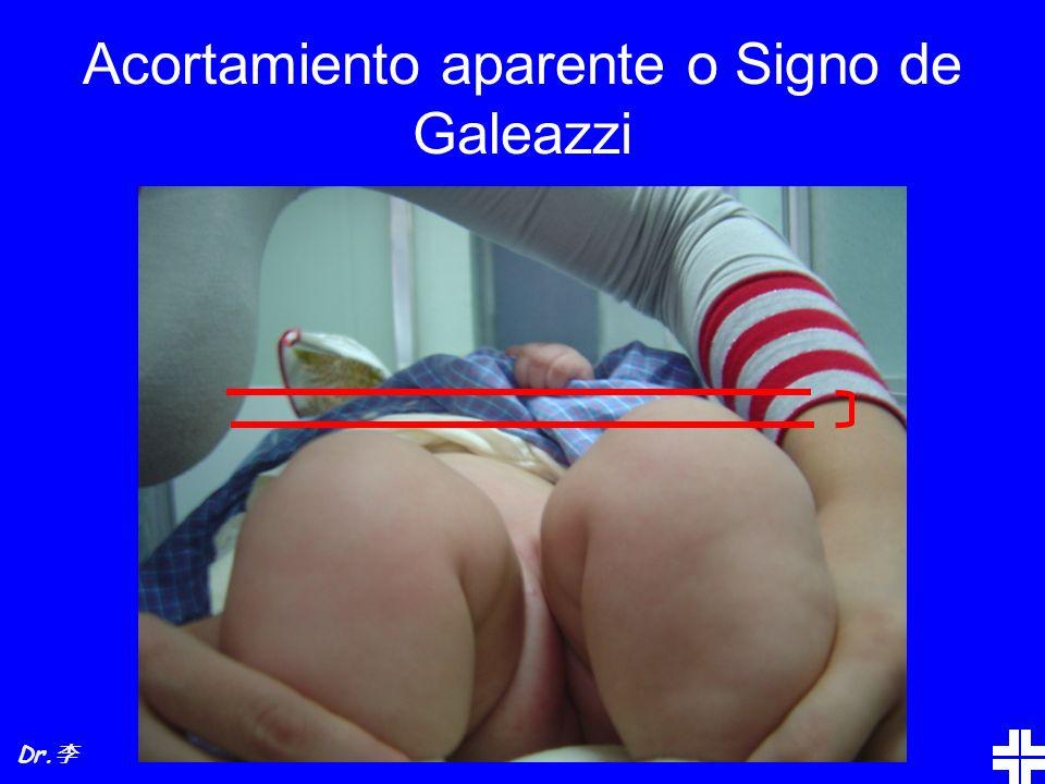 Acortamiento aparente o Signo de Galeazzi Dr.
