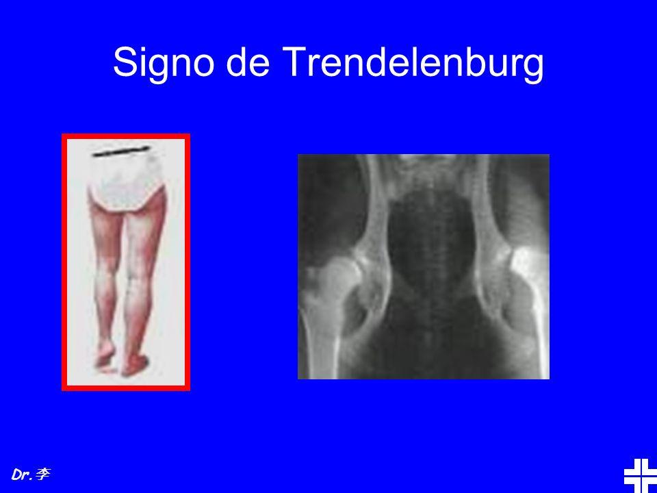 Signo de Trendelenburg Dr.