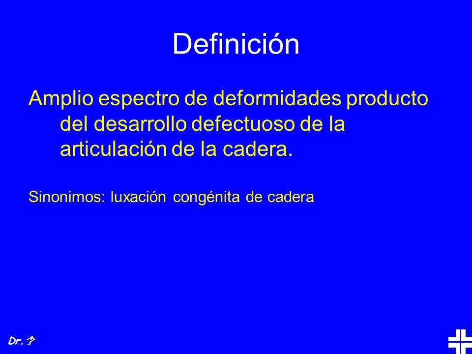 Definición Amplio espectro de deformidades producto del desarrollo defectuoso de la articulación de la cadera. Sinonimos: luxación congénita de cadera