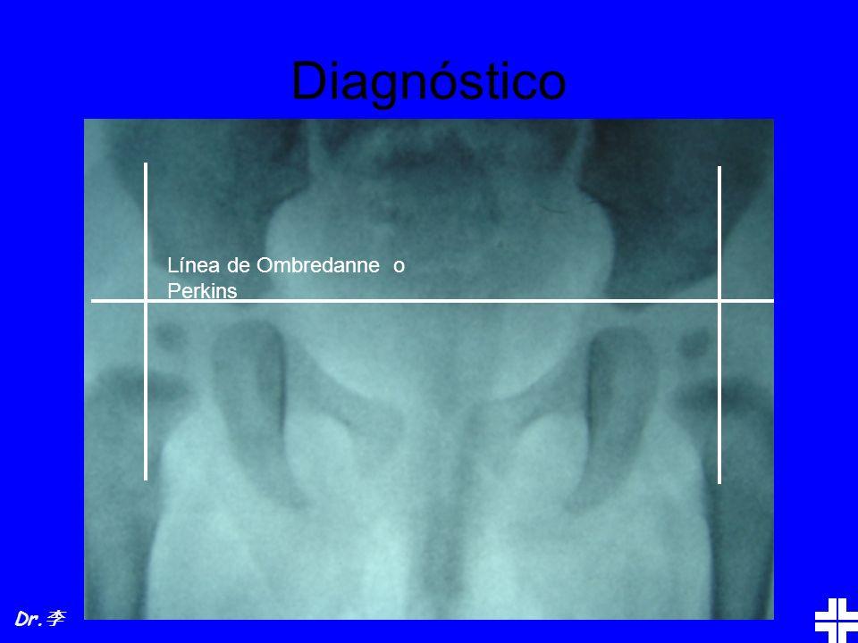 Diagnóstico Línea de Ombredanne o Perkins Dr.