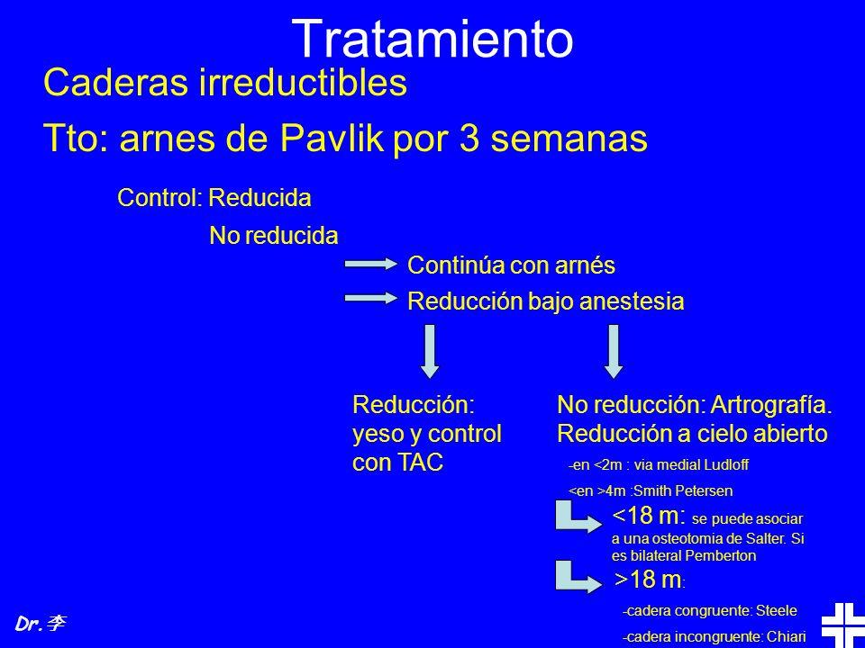 Tratamiento Caderas irreductibles Tto: arnes de Pavlik por 3 semanas Control: Reducida No reducida Continúa con arnés Reducción bajo anestesia Reducci