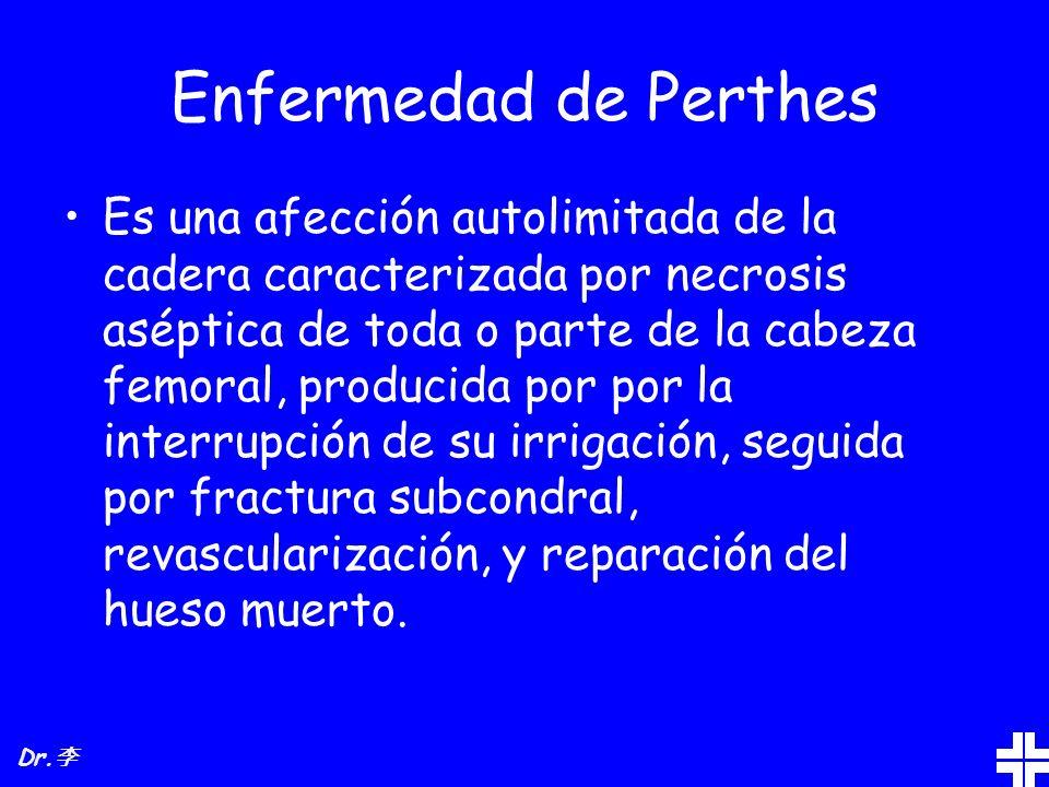 Enfermedad de Perthes Es una afección autolimitada de la cadera caracterizada por necrosis aséptica de toda o parte de la cabeza femoral, producida po