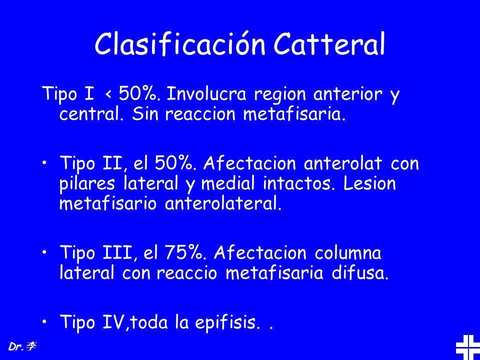 Clasificación Catteral Tipo I < 50%. Involucra region anterior y central. Sin reaccion metafisaria. Tipo II, el 50%. Afectacion anterolat con pilares