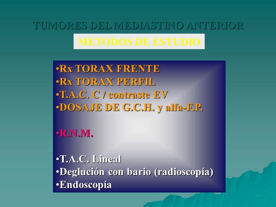 TUMORES DEL MEDIASTINO ANTERIOR METODOS DE ESTUDIO Rx TORAX FRENTERx TORAX FRENTE Rx TORAX PERFILRx TORAX PERFIL T.A.C. C / contraste EVT.A.C. C / con