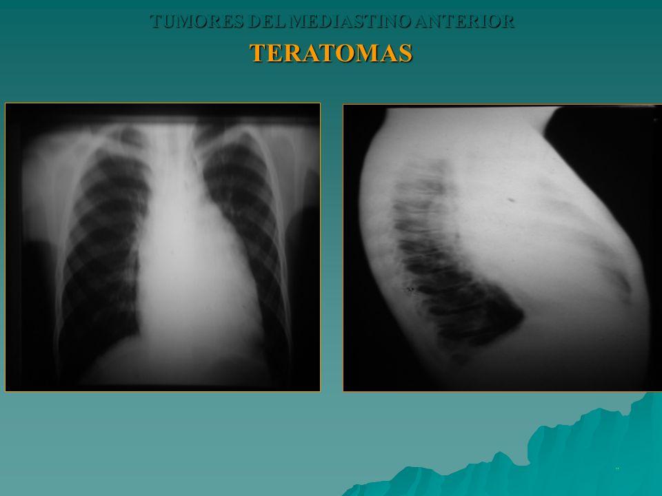 TERATOMAS TUMORES DEL MEDIASTINO ANTERIOR