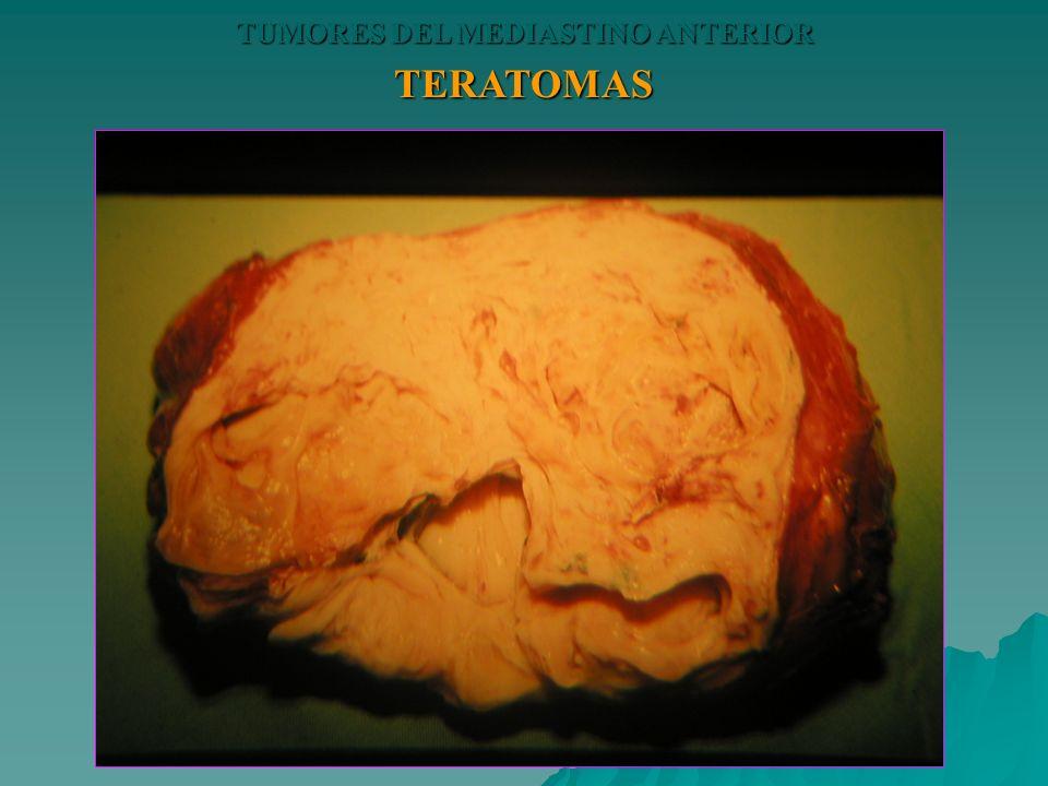 TERATOMAS