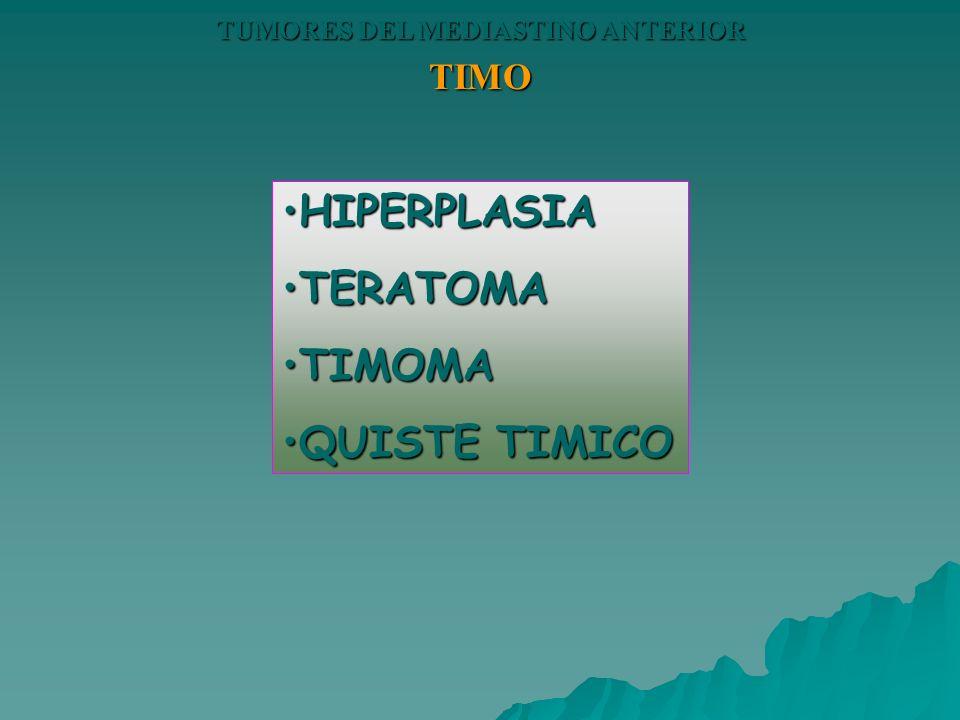 TIMO HIPERPLASIAHIPERPLASIA TERATOMATERATOMA TIMOMATIMOMA QUISTE TIMICOQUISTE TIMICO
