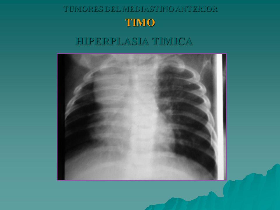 TUMORES DEL MEDIASTINO ANTERIOR TIMO HIPERPLASIA TIMICA