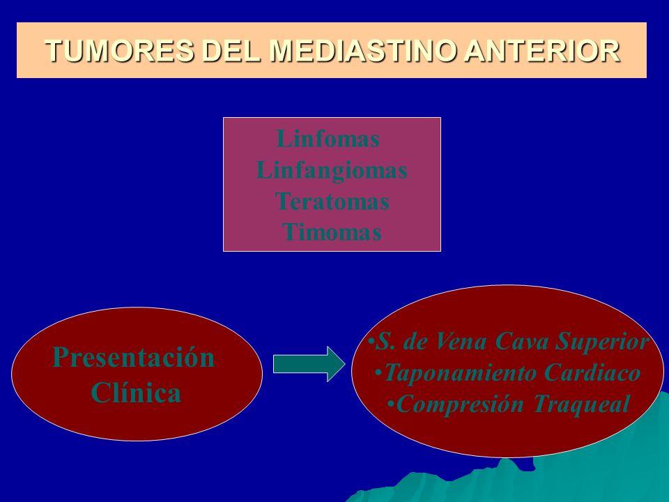TUMORES DEL MEDIASTINO ANTERIOR Linfomas Linfangiomas Teratomas Timomas Presentación Clínica S. de Vena Cava Superior Taponamiento Cardiaco Compresión