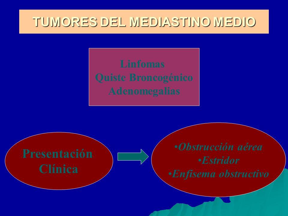 TUMORES DEL MEDIASTINO MEDIO Linfomas Quiste Broncogénico Adenomegalias Presentación Clínica Obstrucción aérea Estridor Enfisema obstructivo