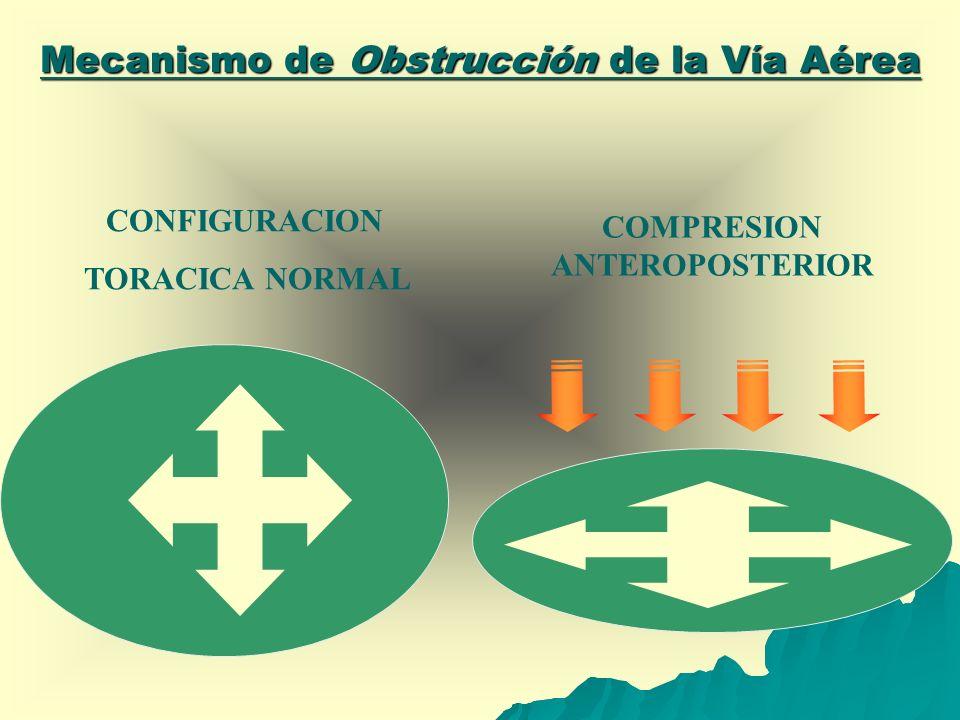 Mecanismo de Obstrucción de la Vía Aérea CONFIGURACION TORACICA NORMAL COMPRESION ANTEROPOSTERIOR