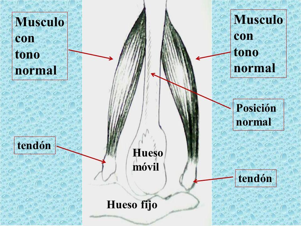 Musculo con tono normal Musculo con tono normal Hueso fijo Hueso móvil tendón Posición normal