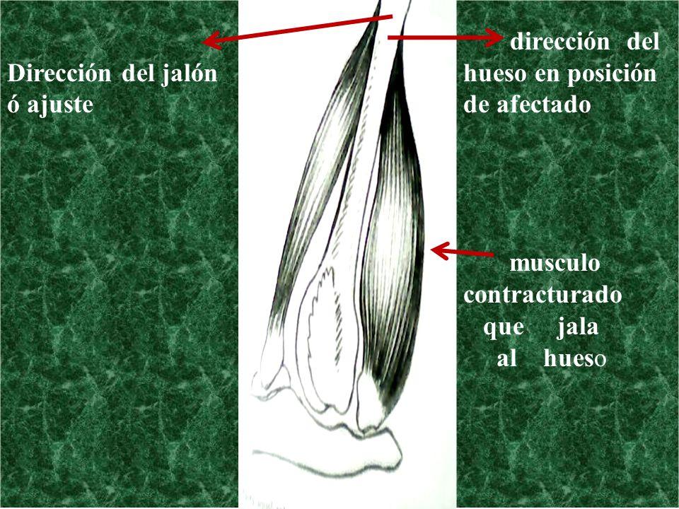 Dirección del jalón ó ajuste dirección del hueso en posición de afectado musculo contracturado que jala al hueso