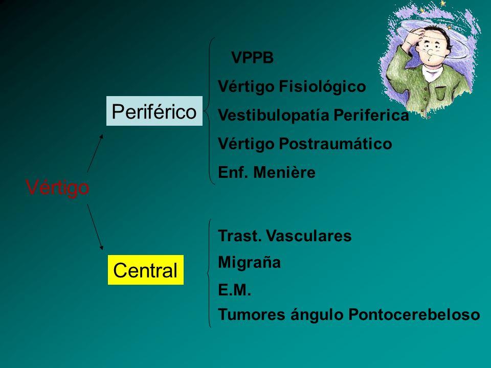 Vértigo Periférico Central Vértigo Fisiológico Vestibulopatía Periferica Vértigo Postraumático Enf. Menière Trast. Vasculares Migraña E.M. Tumores áng