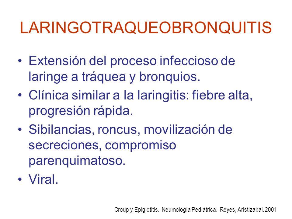 LARINGOTRAQUEOBRONQUITIS Extensión del proceso infeccioso de laringe a tráquea y bronquios. Clínica similar a la laringitis: fiebre alta, progresión r
