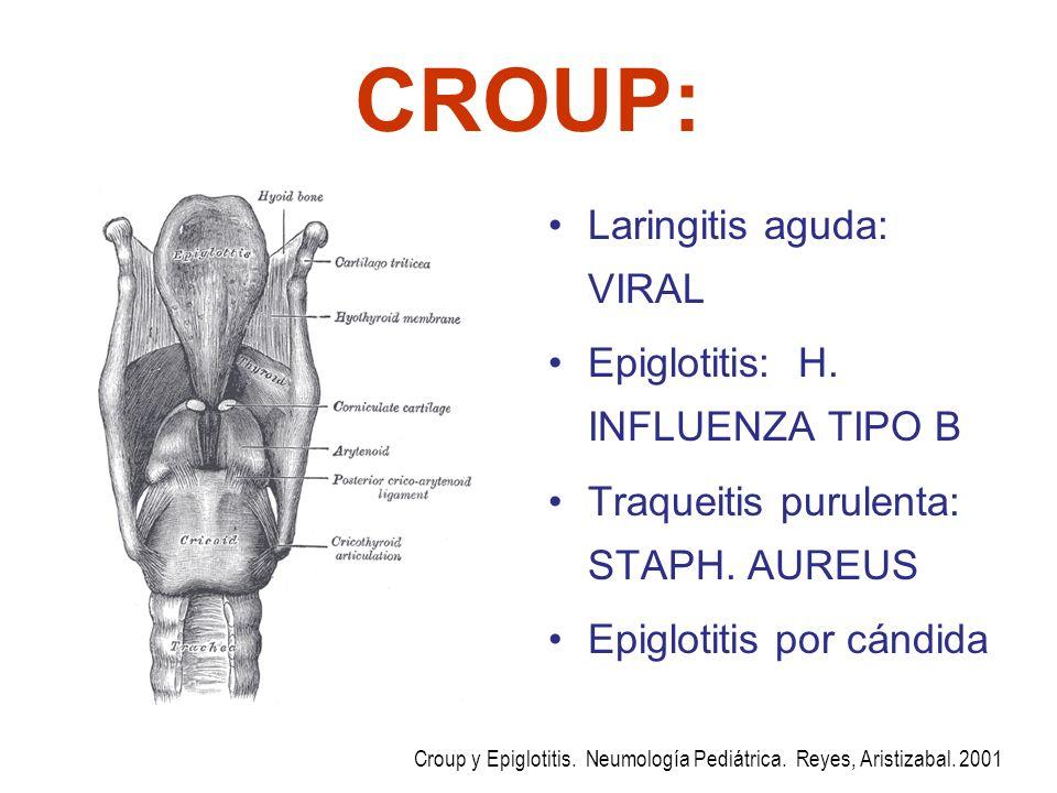 CROUP: Laringitis aguda: VIRAL Epiglotitis: H. INFLUENZA TIPO B Traqueitis purulenta: STAPH. AUREUS Epiglotitis por cándida Croup y Epiglotitis. Neumo