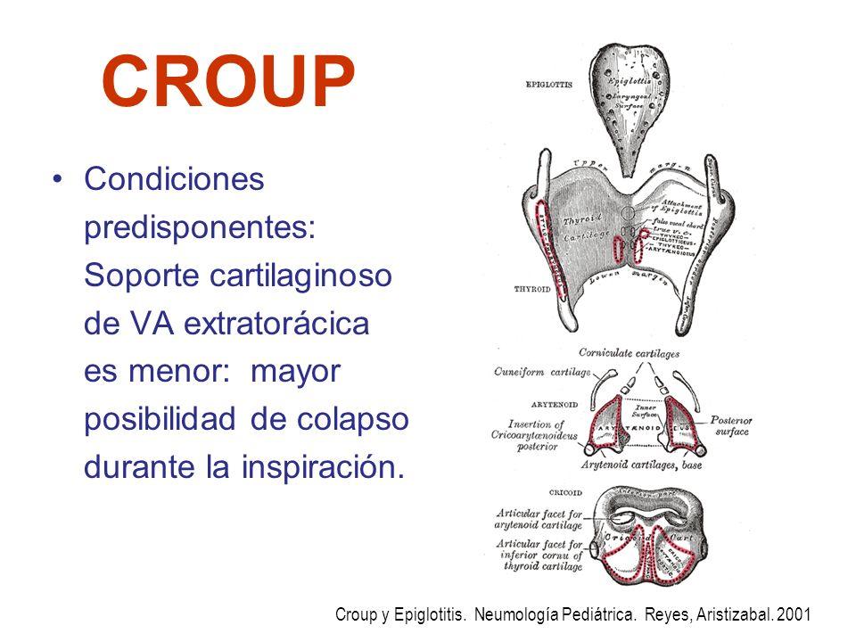 CROUP Condiciones predisponentes: Soporte cartilaginoso de VA extratorácica es menor: mayor posibilidad de colapso durante la inspiración. Croup y Epi