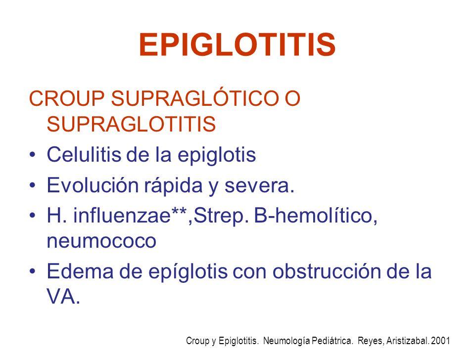 EPIGLOTITIS CROUP SUPRAGLÓTICO O SUPRAGLOTITIS Celulitis de la epiglotis Evolución rápida y severa. H. influenzae**,Strep. B-hemolítico, neumococo Ede