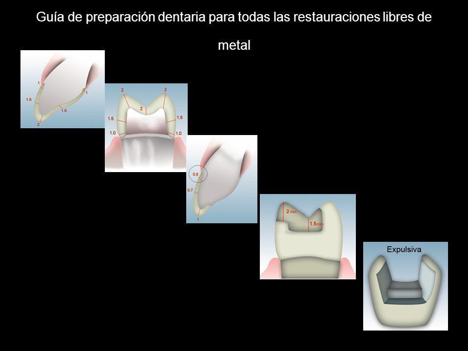 Guía de preparación dentaria para todas las restauraciones libres de metal