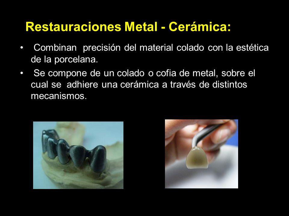 Restauraciones Metal - Cerámica: Combinan precisión del material colado con la estética de la porcelana. Se compone de un colado o cofia de metal, sob
