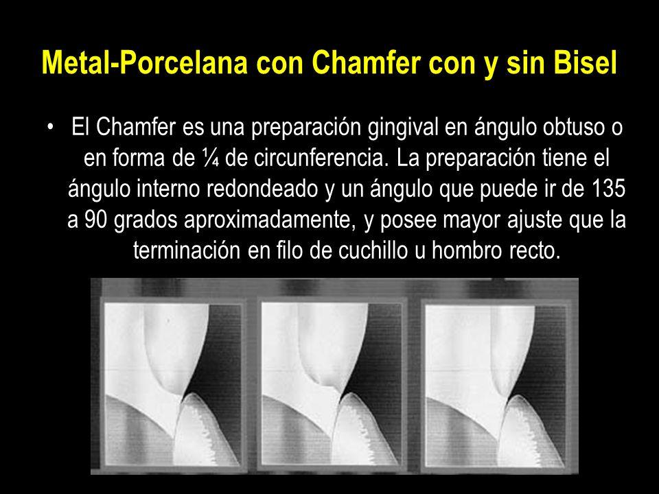 Metal-Porcelana con Chamfer con y sin Bisel El Chamfer es una preparación gingival en ángulo obtuso o en forma de ¼ de circunferencia. La preparación