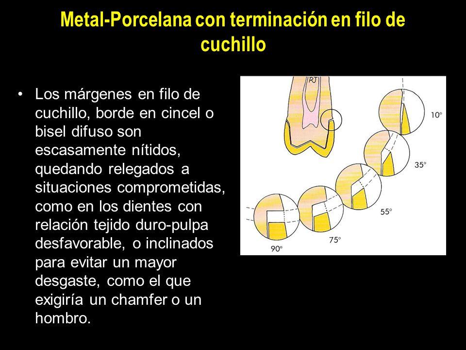 Metal-Porcelana con terminación en filo de cuchillo Los márgenes en filo de cuchillo, borde en cincel o bisel difuso son escasamente nítidos, quedando