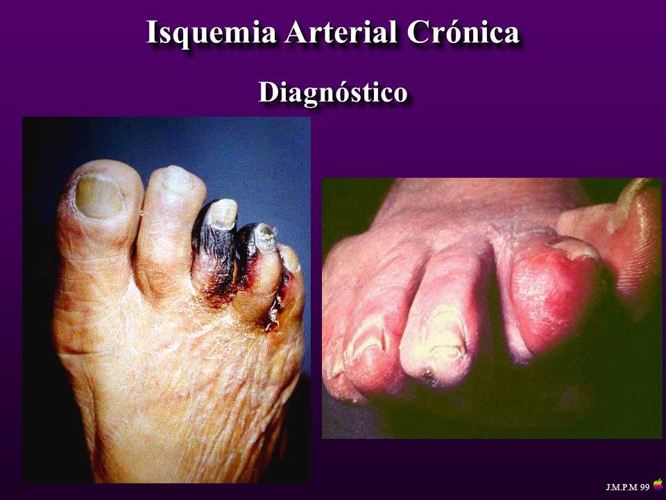 Isquemia Arterial Crónica Diagnóstico J.M.P.M 99