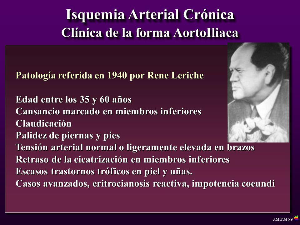 Isquemia Arterial Crónica Clínica de la forma AortoIliaca Patología referida en 1940 por Rene Leriche Patología referida en 1940 por Rene Leriche Edad