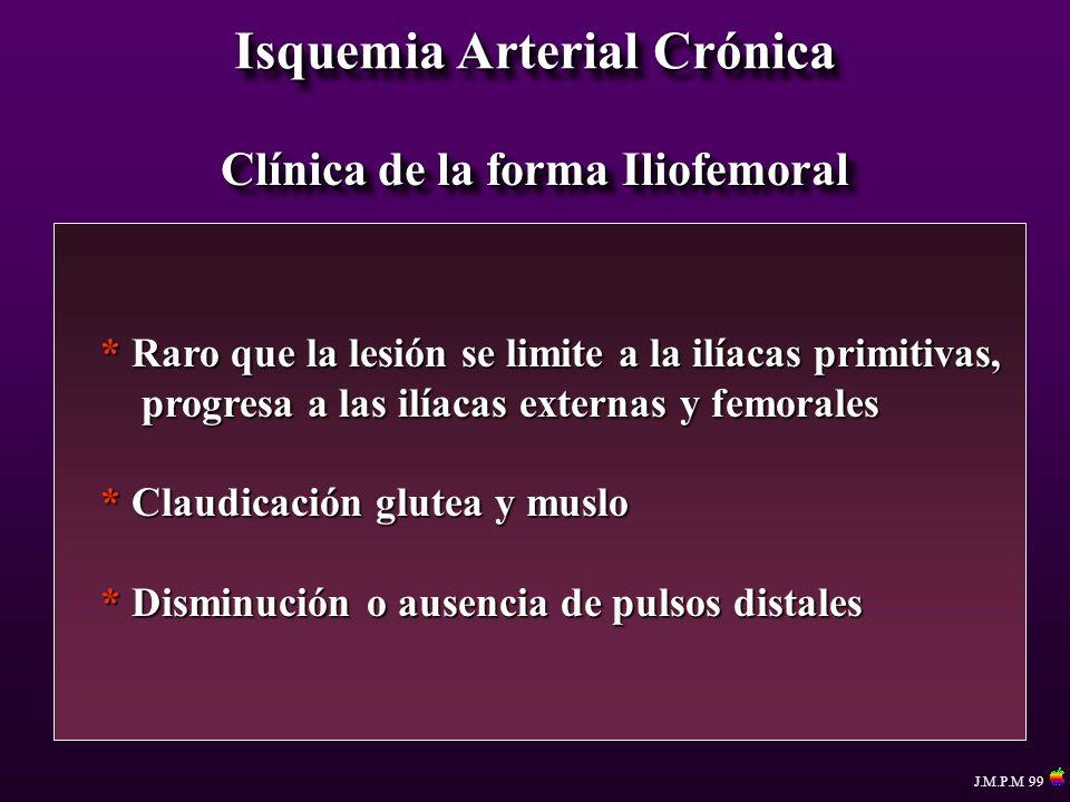 Isquemia Arterial Crónica Clínica de la forma Iliofemoral * Raro que la lesión se limite a la ilíacas primitivas, progresa a las ilíacas externas y fe