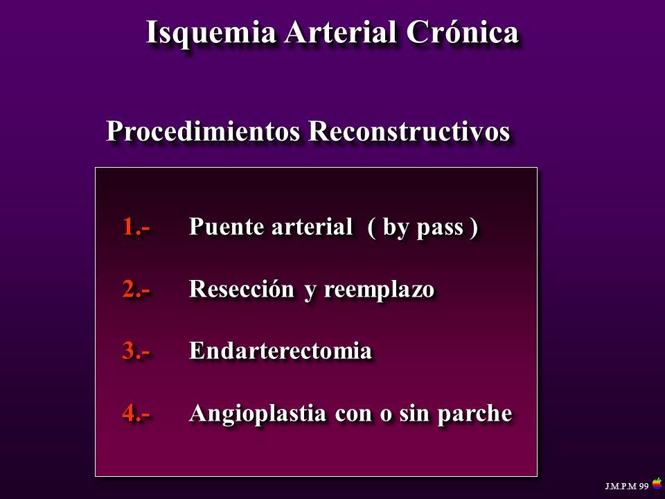 Isquemia Arterial Crónica Procedimientos Reconstructivos 1.-Puente arterial ( by pass ) 2.-Resección y reemplazo 3.-Endarterectomia 4.-Angioplastia co