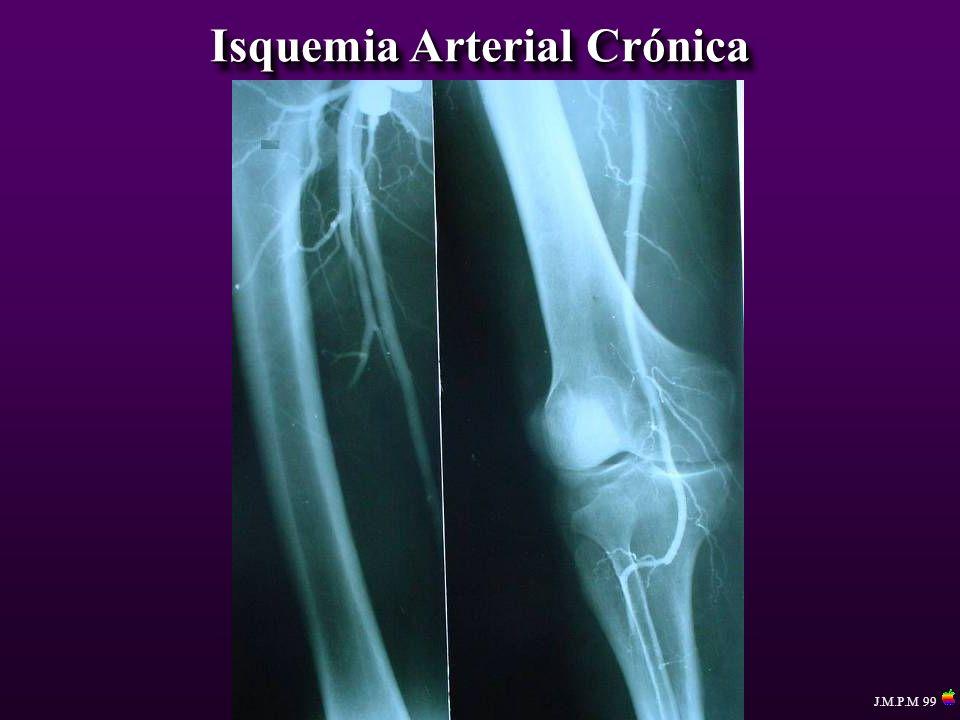 Isquemia Arterial Crónica J.M.P.M 99
