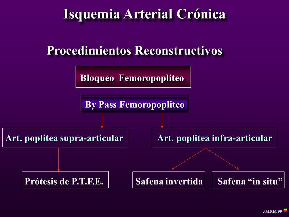Isquemia Arterial Crónica Procedimientos Reconstructivos Bloqueo Femoropopliteo By Pass Femoropopliteo Art. poplitea supra-articular Art. poplitea inf