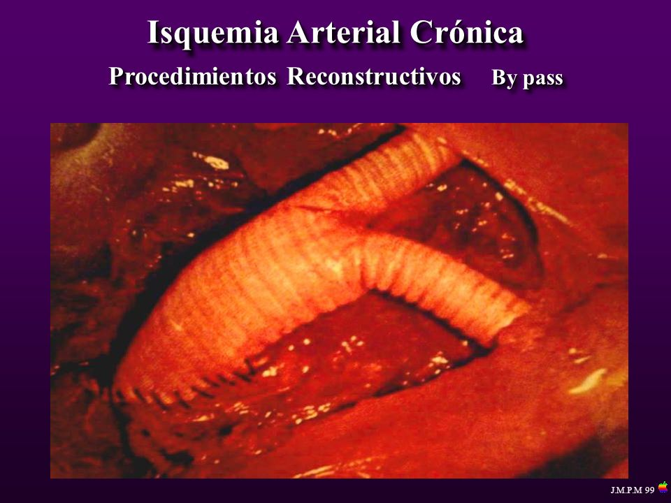 Isquemia Arterial Crónica Procedimientos Reconstructivos By pass J.M.P.M 99
