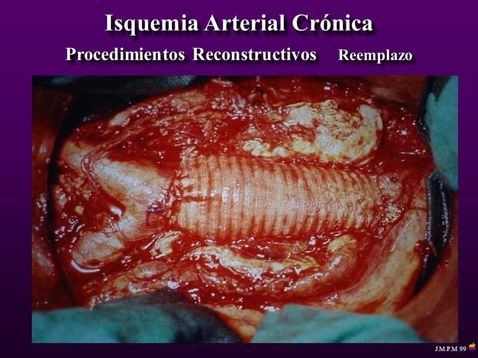 Isquemia Arterial Crónica Procedimientos Reconstructivos Reemplazo J.M.P.M 99