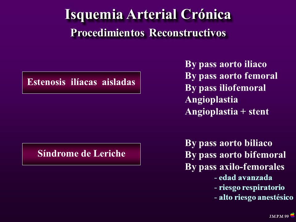 Isquemia Arterial Crónica Procedimientos Reconstructivos By pass aorto iliaco By pass aorto femoral By pass iliofemoral Angioplastia Angioplastia + st