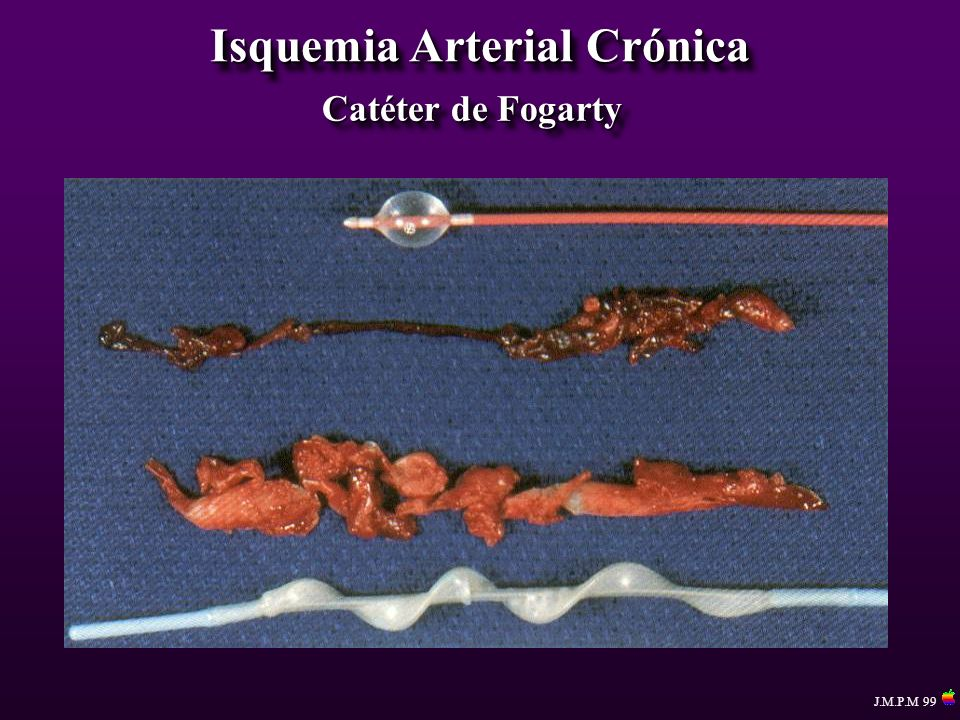 Isquemia Arterial Crónica Catéter de Fogarty J.M.P.M 99