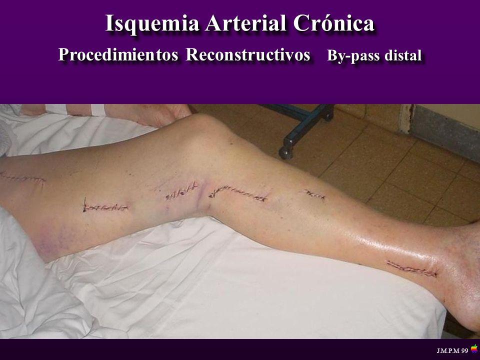 Isquemia Arterial Crónica Procedimientos Reconstructivos By-pass distal J.M.P.M 99