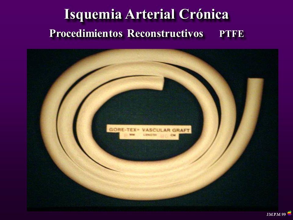 Isquemia Arterial Crónica Procedimientos Reconstructivos PTFE J.M.P.M 99