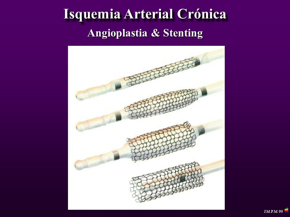 Isquemia Arterial Crónica J.M.P.M 99 Angioplastia & Stenting
