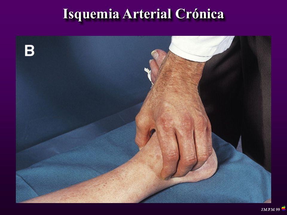 Isquemia Arterial Crónica Procedimientos Reconstructivos 1.-Puente arterial ( by pass ) 2.-Resección y reemplazo 3.-Endarterectomia 4.-Angioplastia con o sin parche 1.-Puente arterial ( by pass ) 2.-Resección y reemplazo 3.-Endarterectomia 4.-Angioplastia con o sin parche J.M.P.M 99