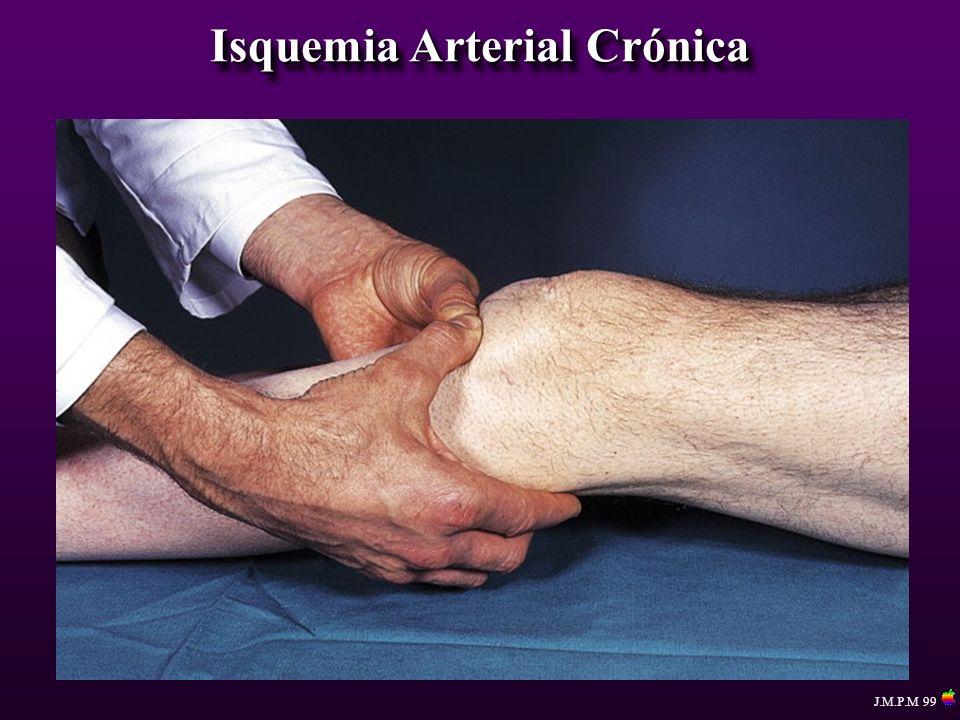 Isquemia Arterial Crónica J.M.P.M 99 Procedimientos Reconstructivos By pass