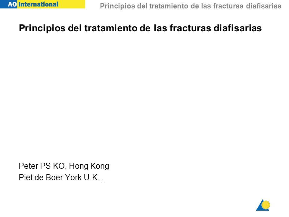 Principios del tratamiento de las fracturas diafisarias Peter PS KO, Hong Kong Piet de Boer York U.K..