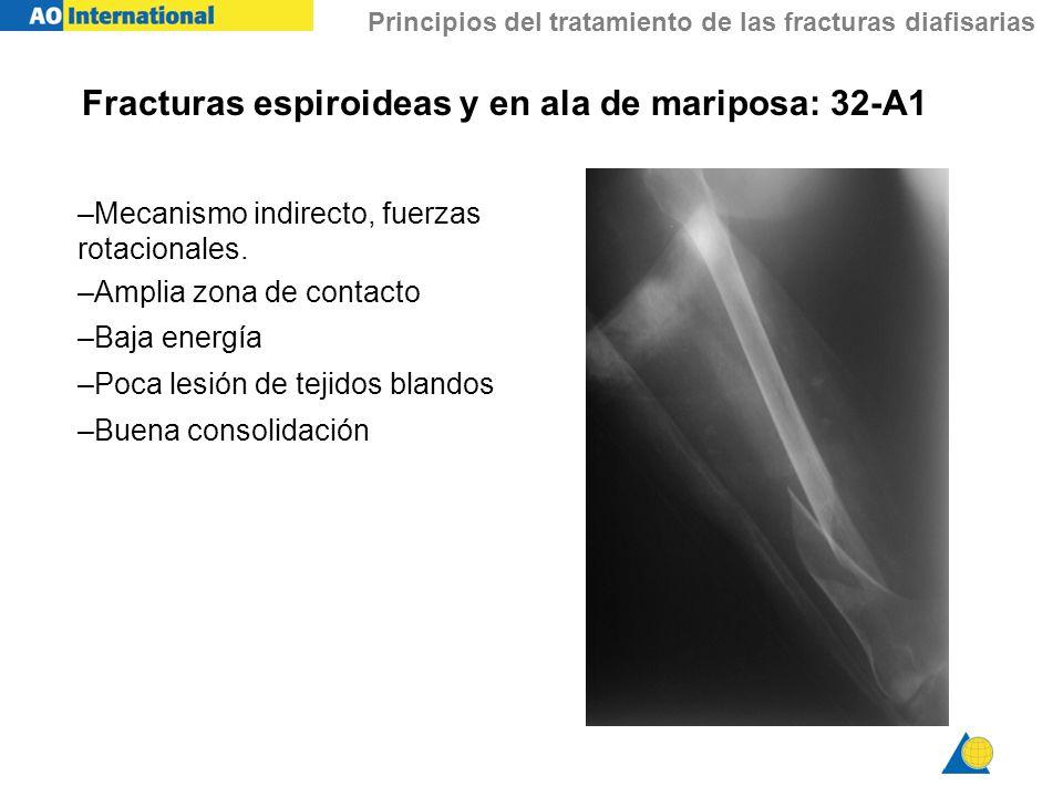 Principios del tratamiento de las fracturas diafisarias Fracturas espiroideas y en ala de mariposa: 32-A1 –Mecanismo indirecto, fuerzas rotacionales.