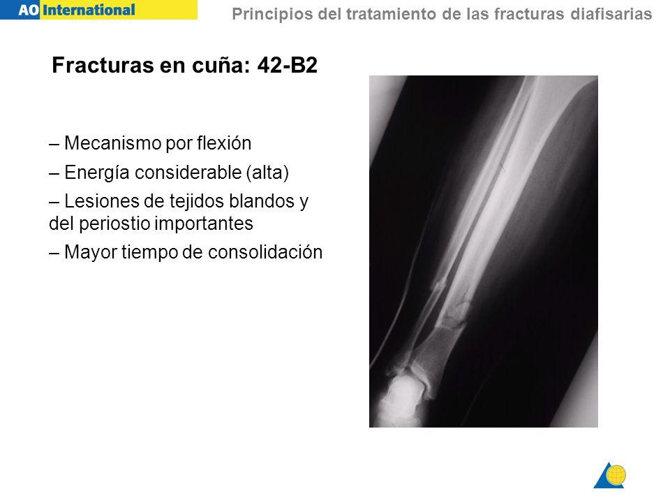 Principios del tratamiento de las fracturas diafisarias Fracturas en cuña: 42-B2 – Mecanismo por flexión – Energía considerable (alta) – Lesiones de t