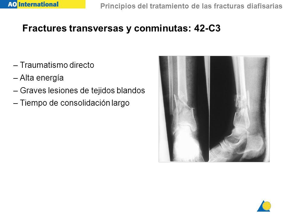 Principios del tratamiento de las fracturas diafisarias Fractures transversas y conminutas: 42-C3 – Traumatismo directo – Alta energía – Graves lesion