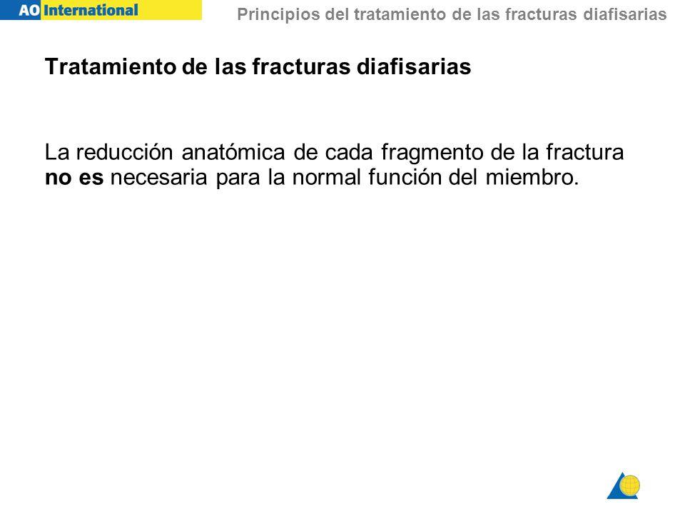 Principios del tratamiento de las fracturas diafisarias Tratamiento de las fracturas diafisarias La reducción anatómica de cada fragmento de la fractu
