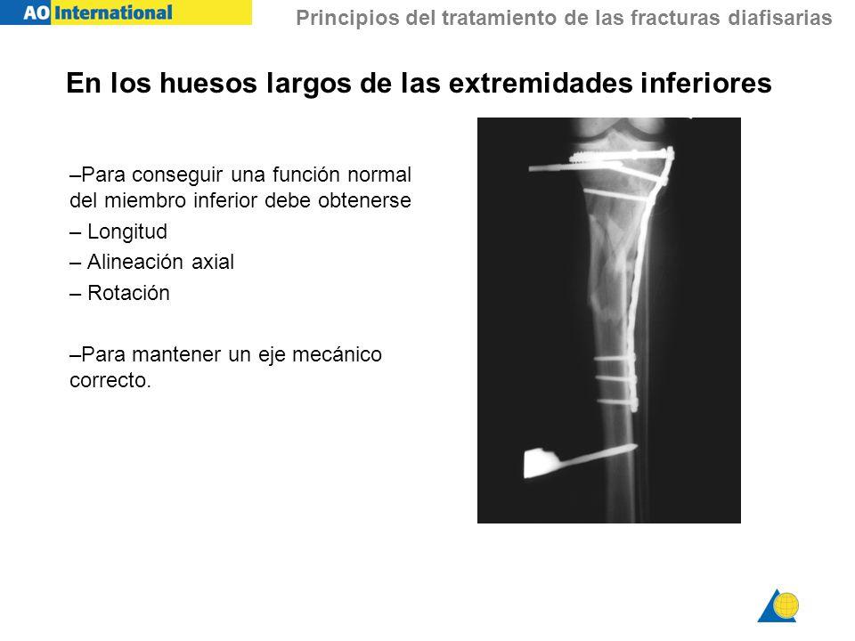 Principios del tratamiento de las fracturas diafisarias En los huesos largos de las extremidades inferiores –Para conseguir una función normal del mie